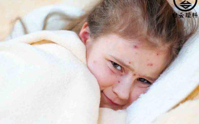 水痘傳染高峰季節來臨,水痘傳染力超強怎麼預防?